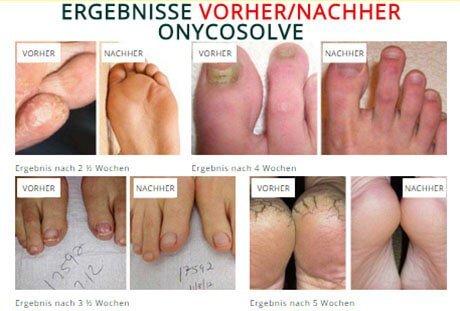 Stinkende Schuhe - Onycosolve: DAS Mittel gegen Fuß- und Nagelpilz
